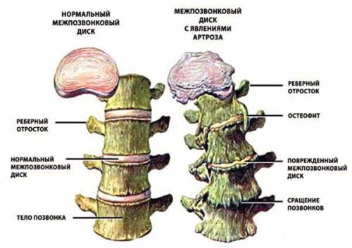 Остеофиты шейного отдела позвоночника что это такое
