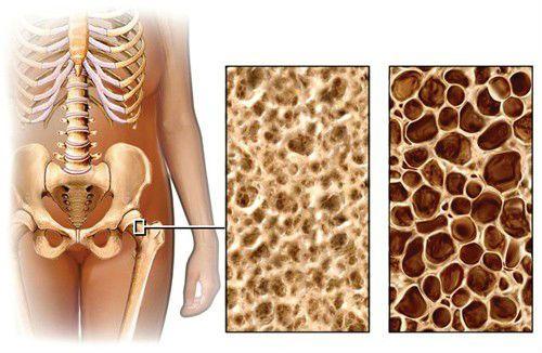 Кость в норме и при остеопорозе