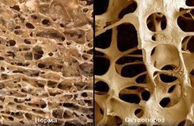 Нормальная и остеопоротическая уость