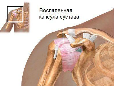 Периартроз плечевого сустава симптомы и лечение