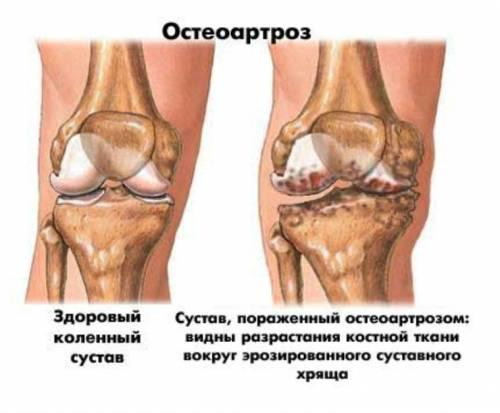 Деформирующий остеоартроз колен