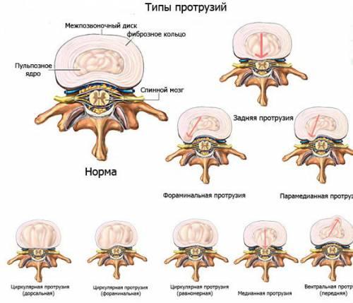 Протрузия поясничного отдела позвоночника симптомы и лечение