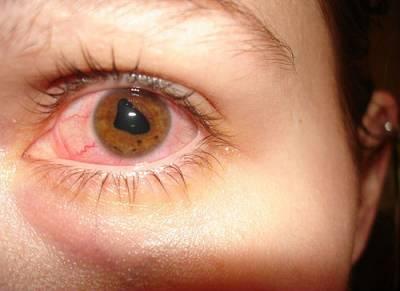 Реактивный артрит у детей симптомы