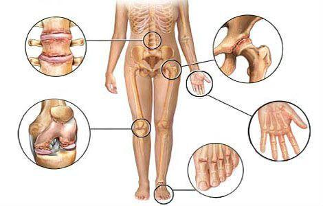 Суставы, которые страдают при ревматоидном артрите