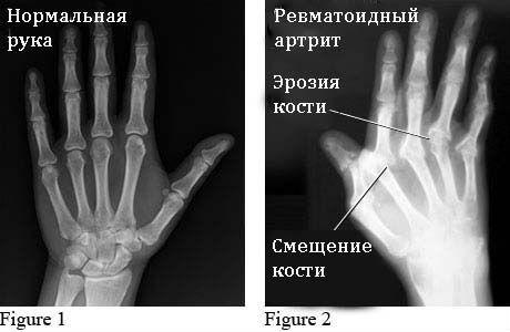Рентген суставов кистей рук