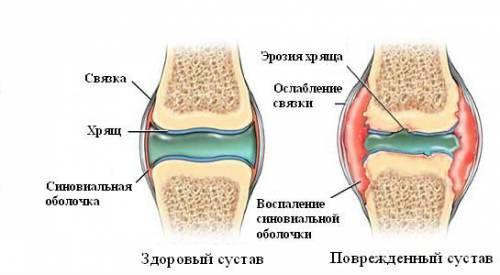 Синовит левого коленного сустава