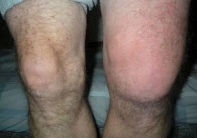 Острый синовит левого колена
