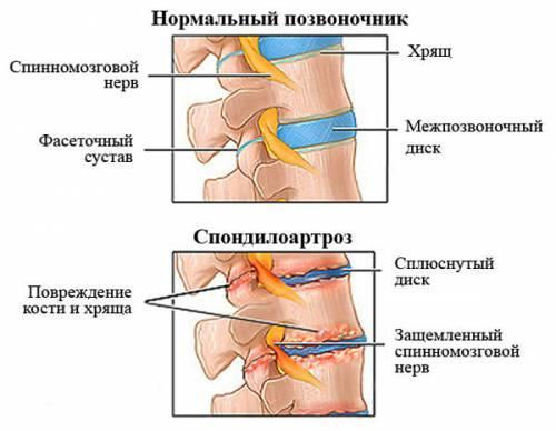 Спондилоартроз грудного отдела позвоночника
