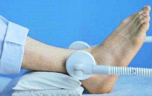 Ультразвуковое лечение голеностопа