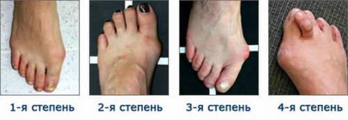 Деформация стопы при остеоартрозе