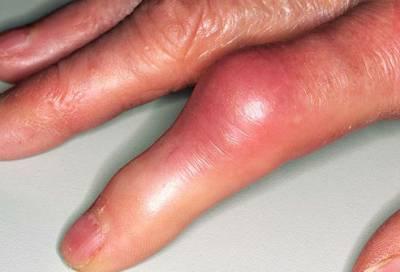 Артрит пальца