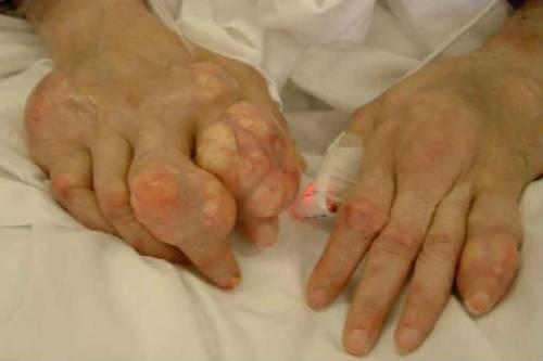 Воспаление суставов пальцев рук