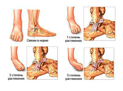Что дает лечение магнитом вывихов суставов