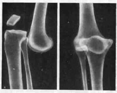Вывих голени на рентгенограмме