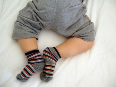 Дисплазия тазобедренного сустава у ребенка