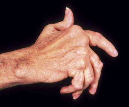 artrit-ruk-7-500x417