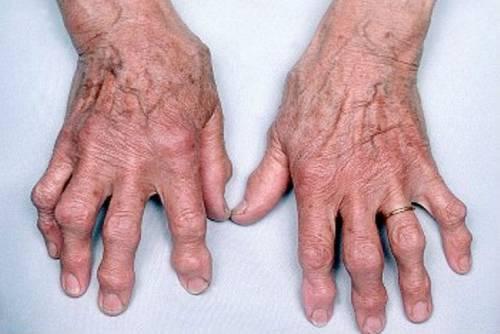 Деформирующий остеоартроз кистей рук лечение