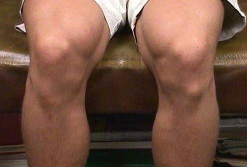 Шишки на коленках
