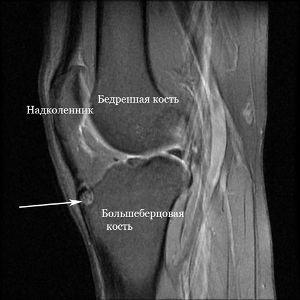 МРТ-снимок ноги