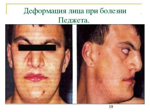 Болезнь педжета костей