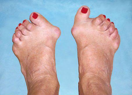 Ревматоидный артрит стоп