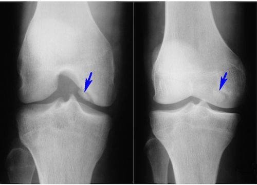 Рассекающий остеохондрит коленного сустава