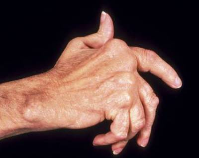 Болезнь суставов пальцев рук