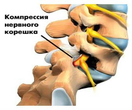 Вертеброгенная цервикобрахиалгия как лечить