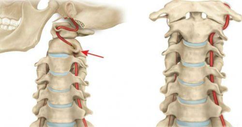 Цервикокраниалгия на фоне шейного остеохондроза лечение