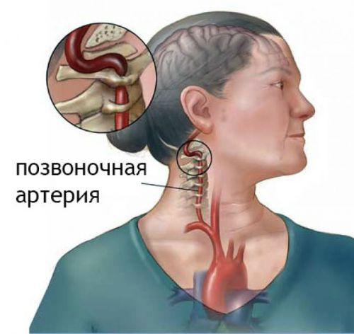 Вертеброгенная цервикокраниалгия что это такое