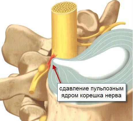 Унковертебральный артроз шейного отдела позвоночника прогноз лечение