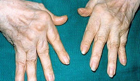 Упадок сил при ревматоидном артрите
