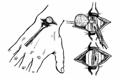 Схема удаления гигромы руки