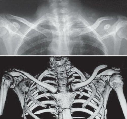 Рентгенография и компьютерная томография грудино-ключичного сустава