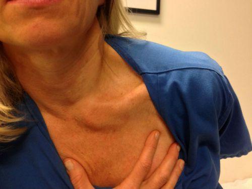 Вывих грудино-ключичного сустава