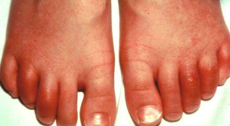 Воспаление пальцев на ногах