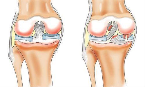 Разрыв связок в суставе