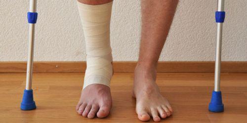 Надрыв связок голеностопного сустава лечение
