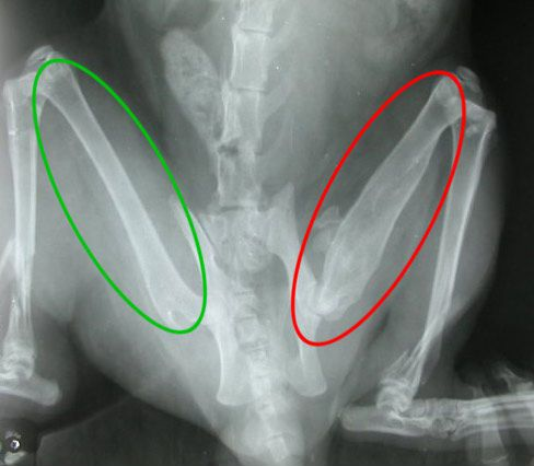 Сращение перелома