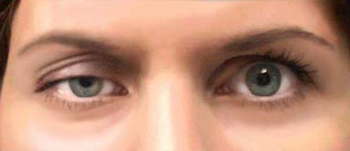 Миастения глазная форма симптомы
