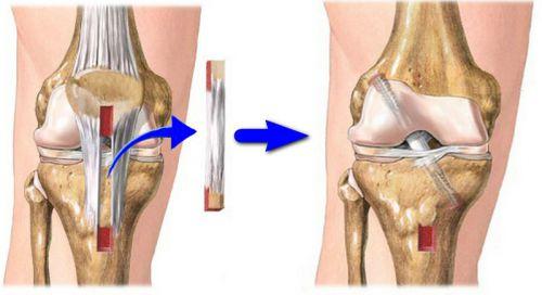 Операция при разрыве коленных связок
