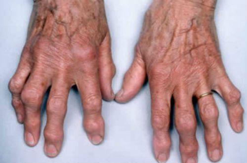 Наросты на пальцах рук