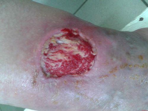 Инфицированная рана