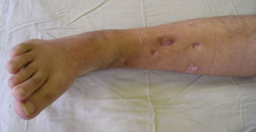 Остеомиелит ноги