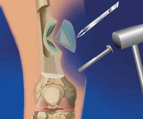 Операция на костях