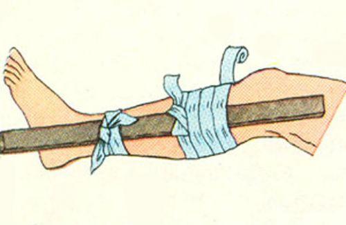Шина при переломе голени