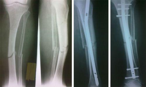 Рентгенография при переломе диафизов берцовых костей