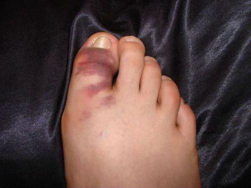 Гематома первого пальца ноги