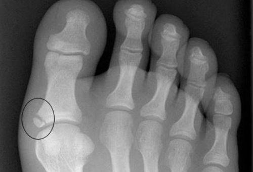 Перелом первого пальца