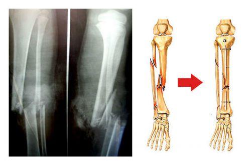 Множественные переломы тел костей голени